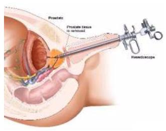 trans prostata